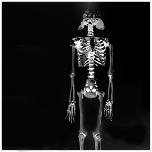 Actual_human_body_X_Ray |  London | R.Cambusano
